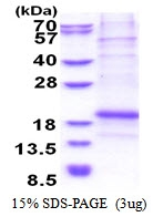AR51356PU-N - Chondromodulin-1