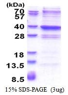 AR51371PU-N - GLYATL2