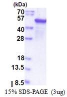 AR51380PU-N - Epoxide hydrolase 1 / EPHX1