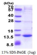 AR51387PU-N - CAMK2N1