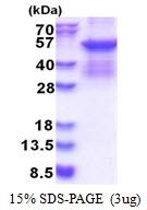 AR51391PU-N - SERPINC1 / Antithrombin-III
