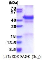 AR51393PU-N - Calreticulin-3