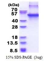 AR51394PU-N - Apolipoprotein J / Apo J