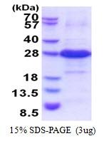 AR51412PU-N - Iodotyrosine dehalogenase 1 / IYD