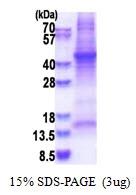 AR51417PU-N - Haptoglobin