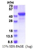 AR51420PU-N - Bestrophin-1