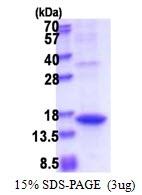 AR51424PU-N - Angiogenin