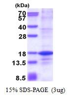 AR51432PU-N - Histone H2A.Z