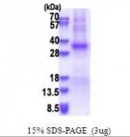 AR51455PU-N - TSSK6 / SSTK