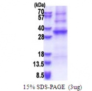 AR51456PU-N - Adenosine deaminase-like protein (ADAL)
