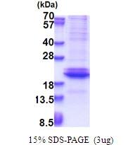 AR51461PU-N - Adiponectin