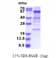 AR51473PU-N - Glutamate dehydrogenase 1