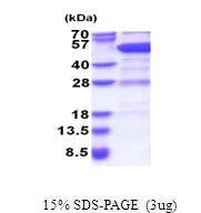 AR51474PU-N - Rab GDI beta / GDI2