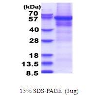 AR51479PU-N - CPEB1