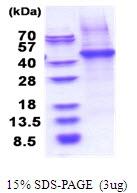 AR51517PU-N - CD14