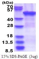 AR51524PU-N - ZCCHC12