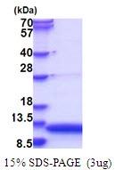 AR51532PU-N - GNRH1 / Progonadoliberin-1
