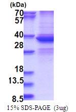AR51539PU-N - DDX39