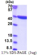 AR51571PU-N - DNAJC27 / RBJ