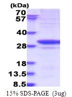 AR51576PU-N - Glycyl-tRNA synthetase