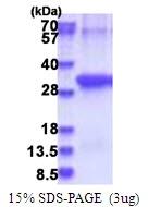 AR51582PU-N - Anthrax toxin receptor 2 / ANTXR2