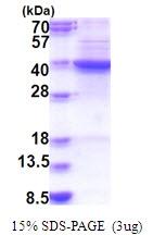 AR51609PU-N - Squalene synthetase