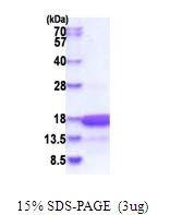 AR51616PU-N - HMGN3 / TRIP7