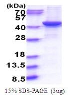 AR51618PU-N - G protein alpha Q / GNAQ