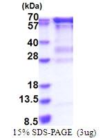 AR51625PU-N - RNGTT / HCE