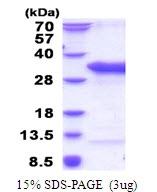 AR51629PU-N - TSR2