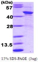 AR09121PU-L - Alpha-1-antitrypsin