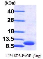 AR09144PU-L - CXCL3 / MIP2B