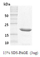 AR50001PU-N - Somatotropin / Growth Hormone / GH1