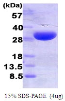 AR50031PU-N - Heme oxygenase 1 / HMOX1