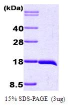 AR09047PU-L - Interleukin-1 beta / IL-1B
