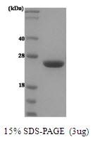 AR50007PU-N - Prolactin / PRL