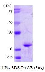AR03033PU-N - Superoxide Dismutase 1 / SOD1