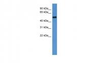 ARP30159_P050 - Cyclin A2