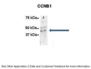 ARP30161_P050 - Cyclin B1