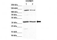 ARP30163_P050 - Cyclin D1