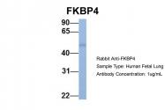 ARP30180_P050 - FKBP4