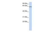 ARP30305_P050 - RELA / NF-kB p65