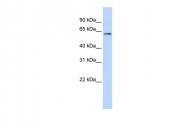 ARP30312_P050 - TP53 / p53