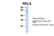 ARP30371_P050 - RELA / NF-kB p65