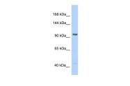 ARP30652_P050 - Insulin-degrading enzyme
