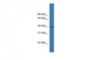 ARP30823_P050 - LTB4R / BLTR