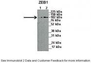 ARP30976_P050 - ZEB1
