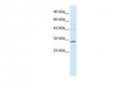 ARP31444_P050 - HOXB5 / HOX2A