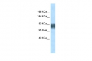 ARP31494_P050 - Advillin