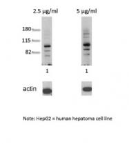 ARP31635_T100 - Ah receptor / AhR